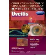 Uveitis - Wills Eye Institute (Color Atlas and Synopsis of Clinical Ophthalmology)