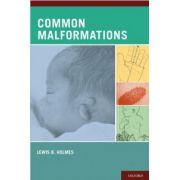 Common Malformations