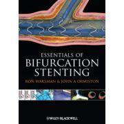 Essentials of Bifurcation Stenting