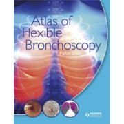 Atlas of Flexible Bronchoscopy