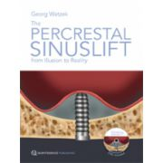 Percrestal Sinuslift: From Illusion to Reality
