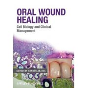 Oral Wound Healing: Cell Biology and Clinical Management
