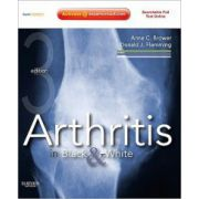 Arthritis in Black and White