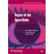 Repair of the Open Globe