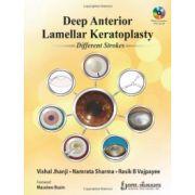 Deep Anterior Lamellar Keratoplasty