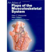 Atlas of Flaps of the Musculoskeletal System