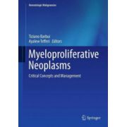 Myeloproliferative Neoplasms. Critical Concepts and Management