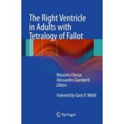 Right Ventricle in Adults with Tetralogy of Fallot