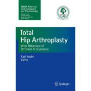 Total Hip Arthroplasty: Wear Behaviour of Different Articulations