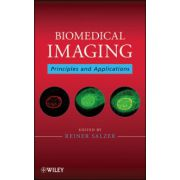 Biomedical Imaging: Principles and Applications