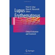 Lupus Erythematosus: Clinical Evaluation and Treatment