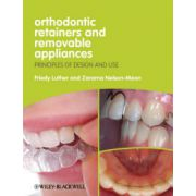 Orthodontic Retainers and Removable Appliances: Principles of Design and Use