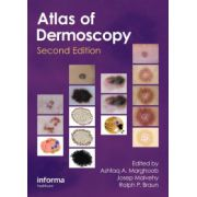 Atlas of Dermoscopy