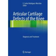 Articular Cartilage Defects of the Knee: Diagnosis and Treatment