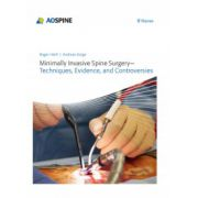 Minimally Invasive Spine Surgery: Techniques, Evidence, and Controversies