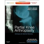 Partial Knee Arthroplasty: Techniques for Optimal Outcomes with DVD