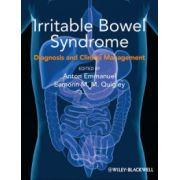 Irritable Bowel Syndrome: Diagnosis and Clinical Management