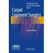 Carpal Ligament Surgery: Before Degenerative Arthritis