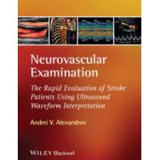 Neurovascular Examination: The Rapid Evaluation of Stroke Patients Using Ultrasound Waveform Interpretation