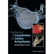Practice of Catheter Cryoablation for Cardiac Arrhythmias