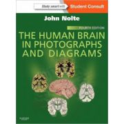 Human Brain in Photographs and Diagrams (with STUDENT CONSULT Online Access)