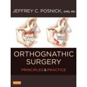 Orthognathic Surgery: Principles and Practice, 2-Volume Set
