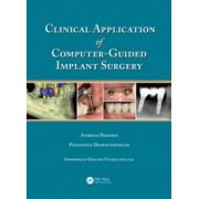 Clinical Application of Computer-Guided Implant Surgery