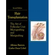 Hair Transplantation: Art of Micrografting and Minigrafting (with DVD)