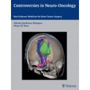 Controversies in Neuro-Oncology. Best Evidence Medicine for Brain Tumor Surgery