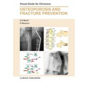 Osteoporosis and Fracture Prevention: Visual Guide for Clinicians