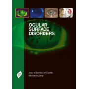 Ocular Surface Disorders