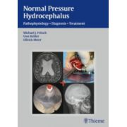 Normal Pressure Hydrocephalus: Pathophysiology - Diagnosis - Treatment