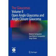 Glaucomas, Volume II - Open Angle Glaucoma and Angle Closure Glaucoma (with DVD)