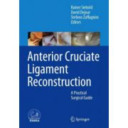 Anterior Cruciate Ligament Reconstruction: A Practical Surgical Guide (ESSKA)