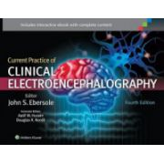 Current Practice of Clinical Electro encephalography