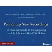 Pulmonary Vein Recordings: A Practical Guide to the Mapping and Ablation of Atrial Fibrillation