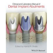 Clinical and Laboratory Manual of Dental Implant Abutments