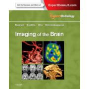 Imaging of the Brain (Expert Radiology Series)