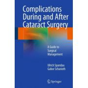 Complications During and After Cataract Surgery: A Guide to Surgical Management