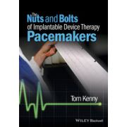 Implantable Device Therapy: Pacemakers (Nuts and Bolts of)