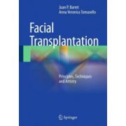 Facial Transplantation: Principles, Techniques and Artistry