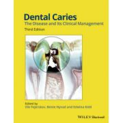 Dental Caries: Disease and its Clinical Management