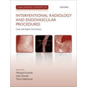 Challenging Concepts in Interventional Radiology
