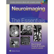 Neuroimaging: Essentials