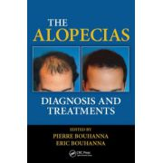 Alopecias: Diagnosis and Treatments