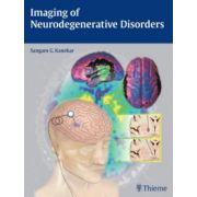 Imaging of Neurodegenerative Disorders