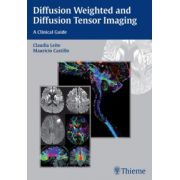 Diffusion Weighted and Diffusion Tensor Imaging: A Clinical Guide