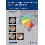 Sinonasal Complications of Dental Disease and Treatment: Prevention - Diagnosis - Management