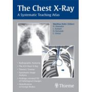 Chest X-Ray: A Systematic Teaching Atlas