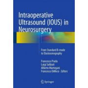 Intraoperative Ultrasound (IOUS) in Neurosurgery: From Standard B-Mode to Elastosonography